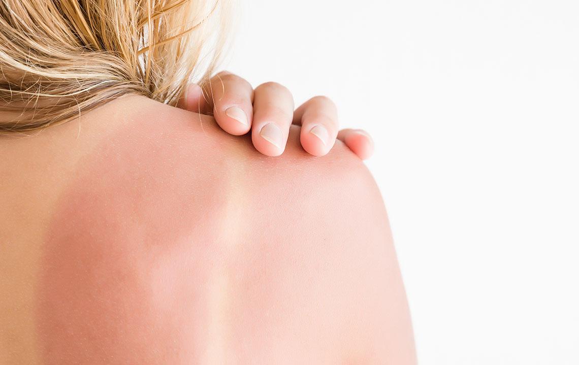 Tipy na upokojenie spálenej pokožky